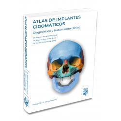 ATLAS DE IMPLANTES CIGOMATICOS : DIAGNOSTICO Y TRATAMIENTO