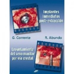 IMPLANTES INMEDIATOS POST-EXTRACCION . LEVANTAMIENTO DEL SENO MAXILAR POR VIA CRESTAL